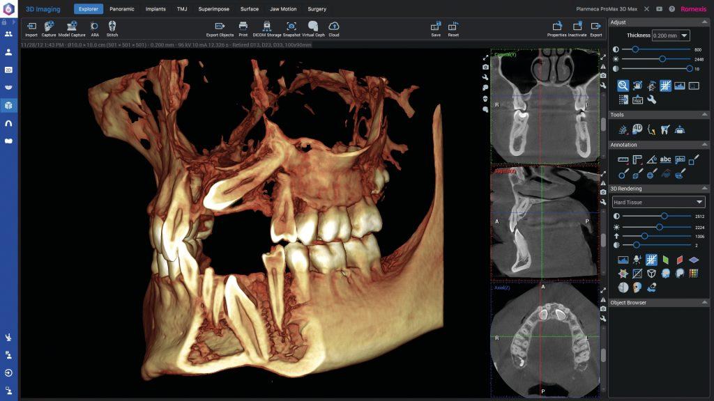 3D CBCT diagnostika